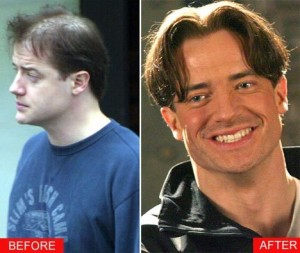 New Hair Loss Treatments | Zenagen Blog | Zenagen Haircare Systems