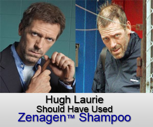Hugh Laurie (House MD) Hair Loss