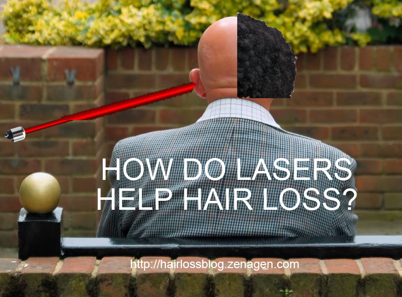 how-do-lasers-help-hair-loss-alopecia-do-lasers-regrow-hair
