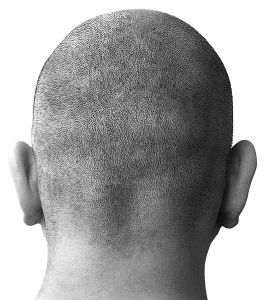 Research Shows Stem Cell Role In Male Pattern Baldness Hair Loss