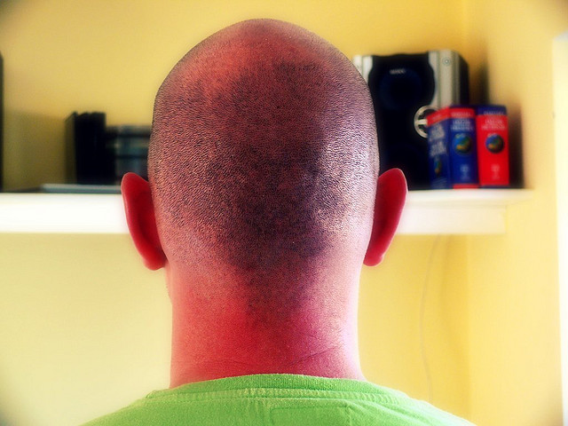 Zenagen Hair Loss Article Scalp Sunburn Protection Info
