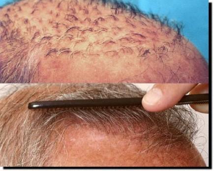 hair-loss-surgery-costs-celeb-hair-loss-1