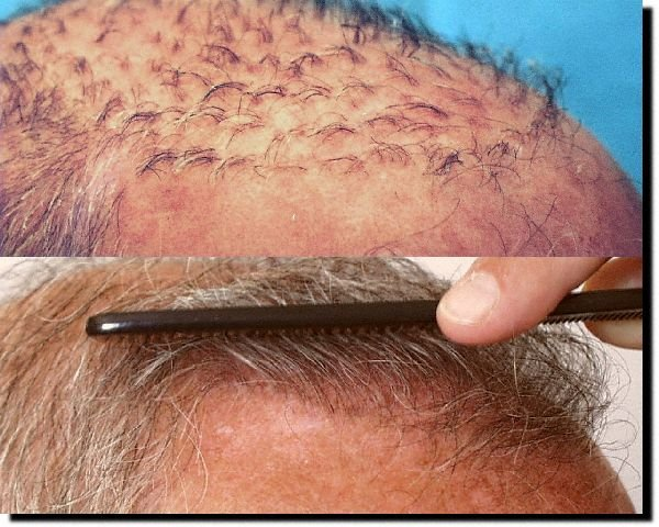 Hair Replacement Surgery Costs How Much Hair Loss Surgery Zenagen
