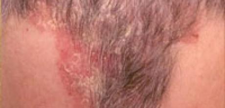 scalp-eczema-thinning-balding-hair-loss-celeb-hair-loss-2