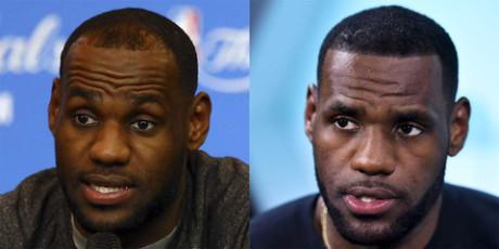 LeBron James Hair Loss